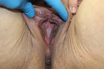 Perineoplasty Before & After Patient #725