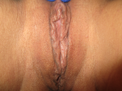 Labiaplasty Before & After Patient #713